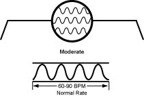 p.moderate The Moderate, Slowed down, Lax, Retarded, Leisurely Pulse (Huan Mai)