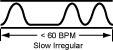 p.slow.irreg The Slow Irregular, Knotted, Bound Pulse (Jie Mai)